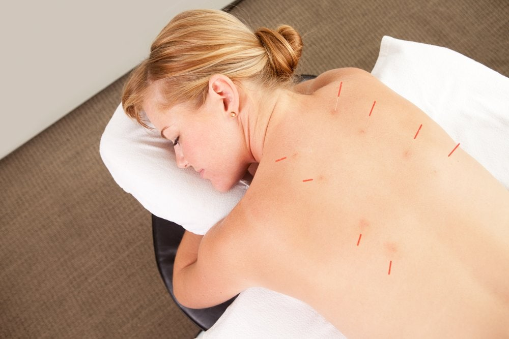does acupuncture hurt